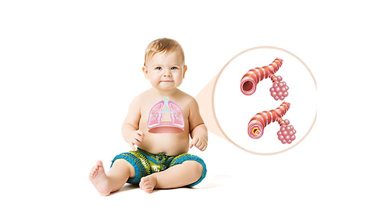 Đối với những người lần đầu làm cha mẹ, bé bị viêm tiểu phế quản bao lâu thì khỏi là câu hỏi rất thường gặp