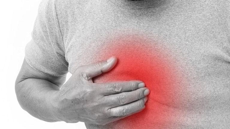 Thuốc trị trào ngược dạ dày thực quản