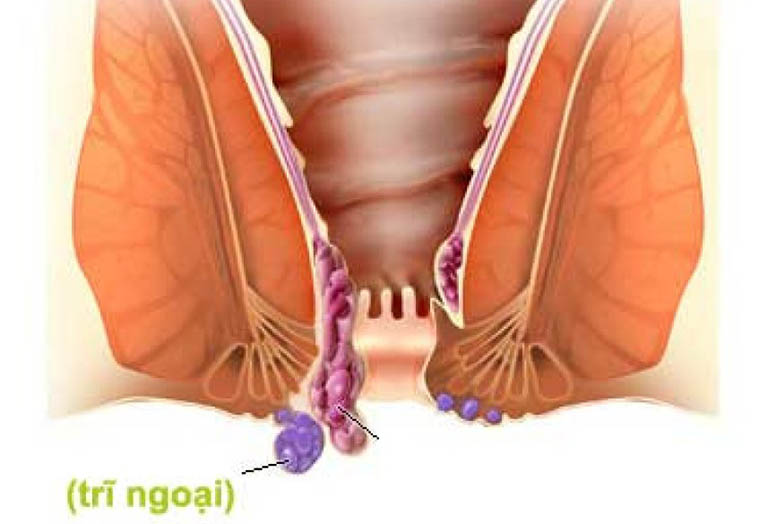 Nguyên nhân, dấu hiệu nhận biết bệnh trĩ ngoại độ 1-2-3-4