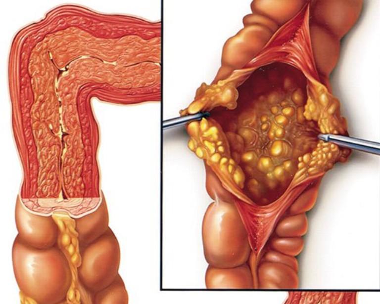 Tổn thương bên trong đại tràng do bệnh viêm đại tràng giả mạc gây ra