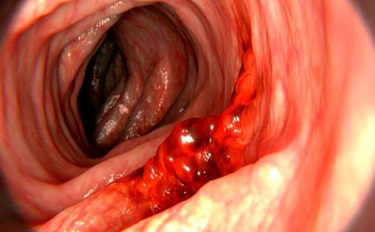 Xuất huyết đại tràng là tình trạng lớp niêm mạc lót trong bị tổn thương nặng nề gây chảy máu