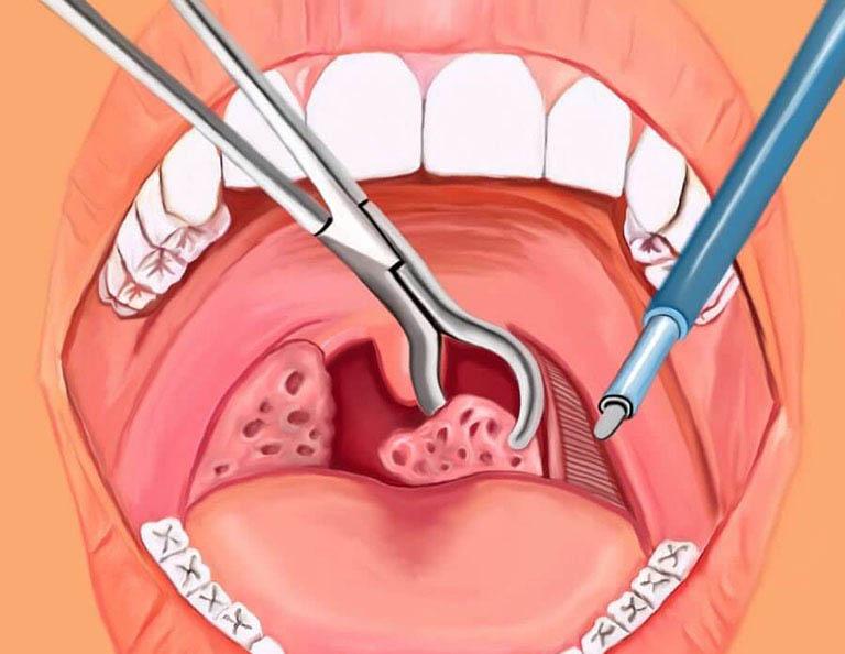 Thủ thuật cắt bỏ khối amidan được áp dụng trong nhiều trường hợp bị viêm amidan nặng hoặc có biến chứng