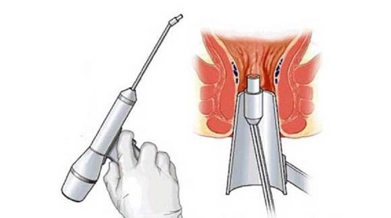 phẫu thuật trĩ bằng laser