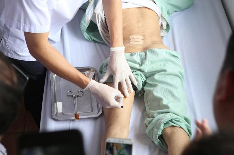 Cấy chỉ là một phương pháp khá an toàn và hiệu quả trong điều trị bệnh viêm xoang