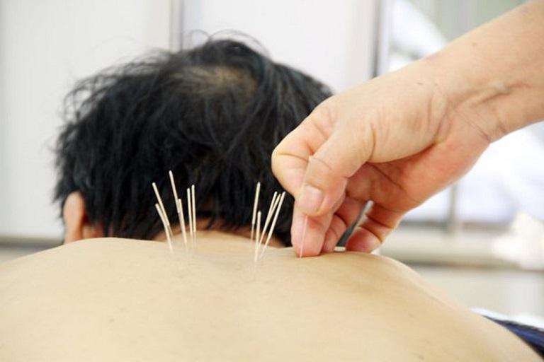 Châm cứu được xem là phương pháp điều trị hiệu quả với nhiều loại bệnh