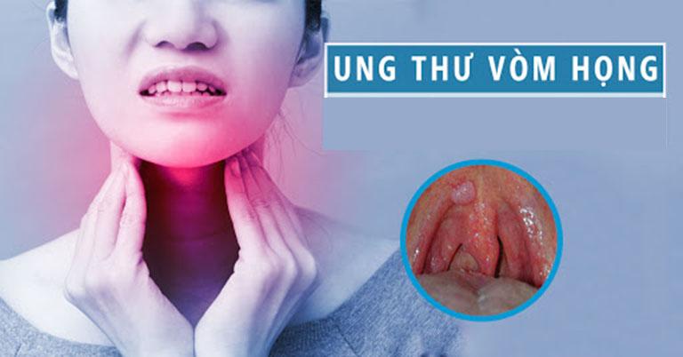 Trong rất nhiều bệnh về đường hô hấp thì ung thư vòm họng là bệnh sẽ đe dọa trực tiếp đến tính mạng người bệnh