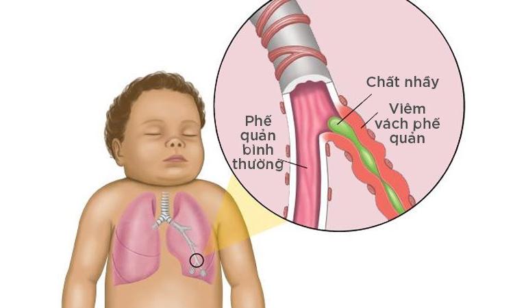 Trẻ em thường là đối tượng dễ mắc bệnh co thắt phế quản khó thở
