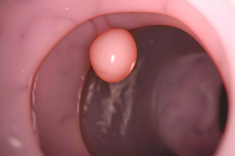 Polyp đại tràng sigma