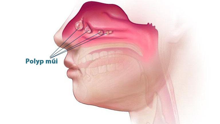 Dị ứng, nhiễm trùng hoặc hen phế quản có thể gây kích ứng polyp mũi
