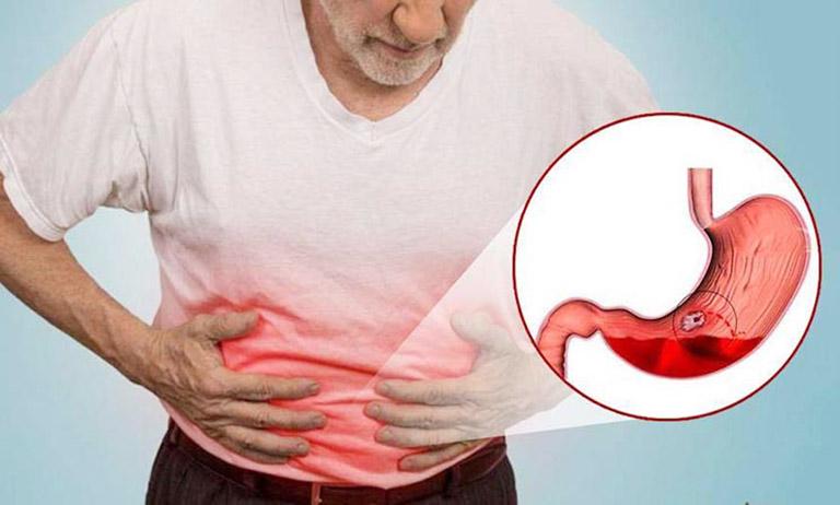 đau thượng vị buồn nôn là bệnh gì