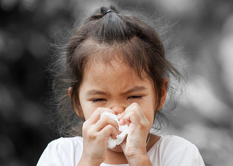 Rất khó để chẩn đoán viêm xoang do virus hay vi khuẩn khi chỉ dựa vào các triệu chứng
