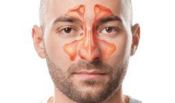 Theo quan niệm của Đông y, viêm xoang xảy ra do cơ thể suy nhược và