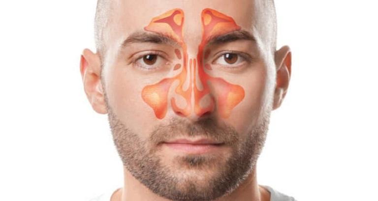Tác hại và biến chứng của viêm xoang gây ảnh hưởng nhiều tới sức khỏe người bệnh
