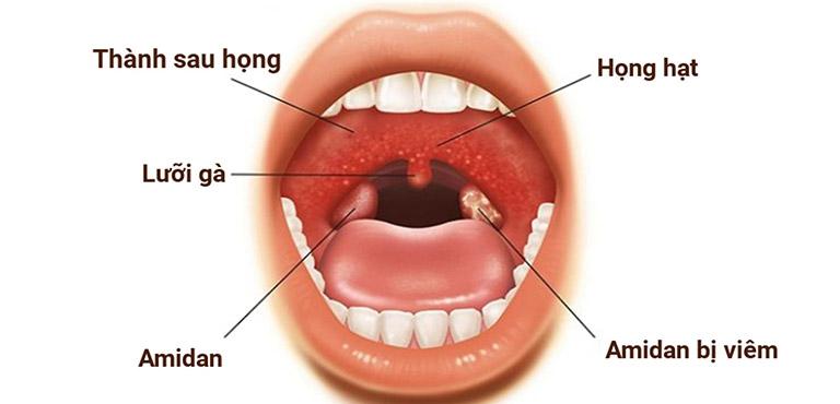Hình ảnh thành họng sau bị viêm, sưng đỏ