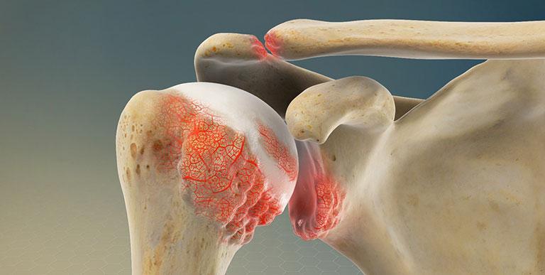 Bài tập vật lý trị liệu viêm quanh khớp vai