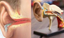 Thối tai là một bệnh lý xuất hiện chảy dịch tai kèm mùi hôi thối