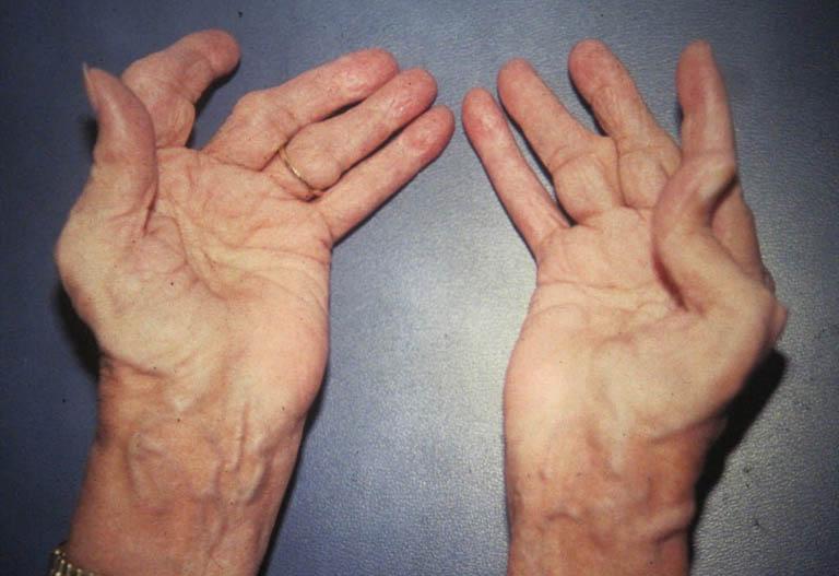 Hiện tượng viêm xảy ra đối xứng ở các khớp