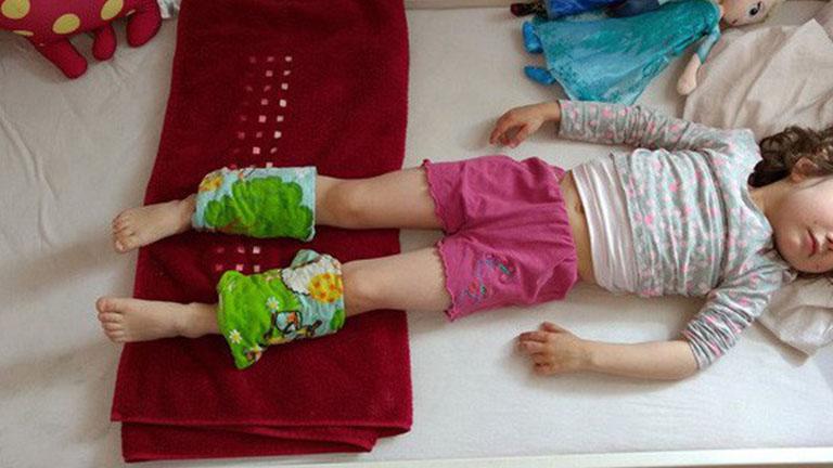 Buộc khăn vào bắp chân là phương pháp hạ sốt được những bà mẹ Đức tin tưởng