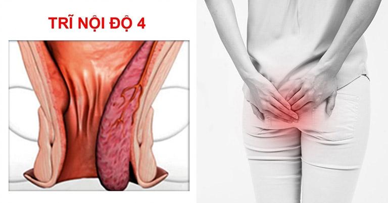 Bệnh trĩ nội độ 4 khá nguy hiểm và có nguy cơ phát sinh biến chứng rất cao