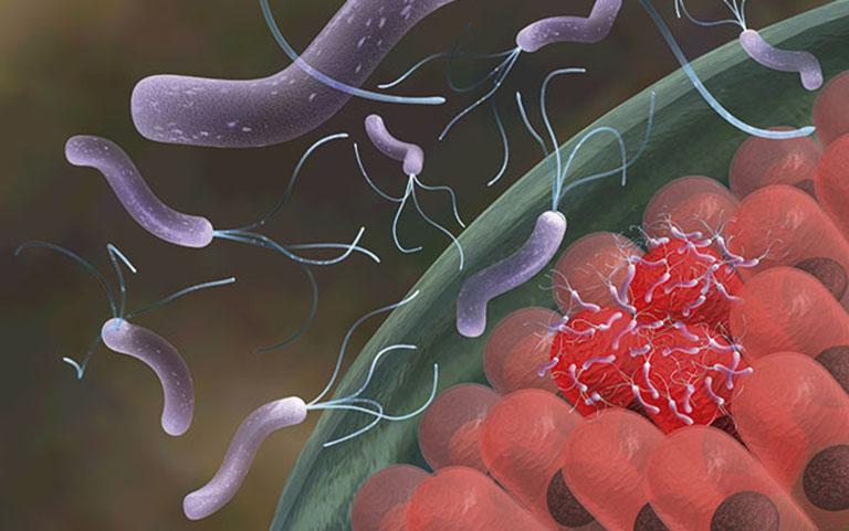 vi khuẩn hp dạ dày có lây không