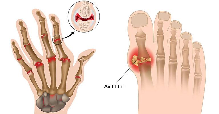 Viêm khớp dạng thấp và gout