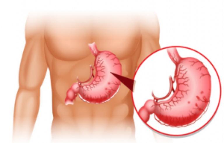 Viêm phù nề hang vị dạ dày xung huyết