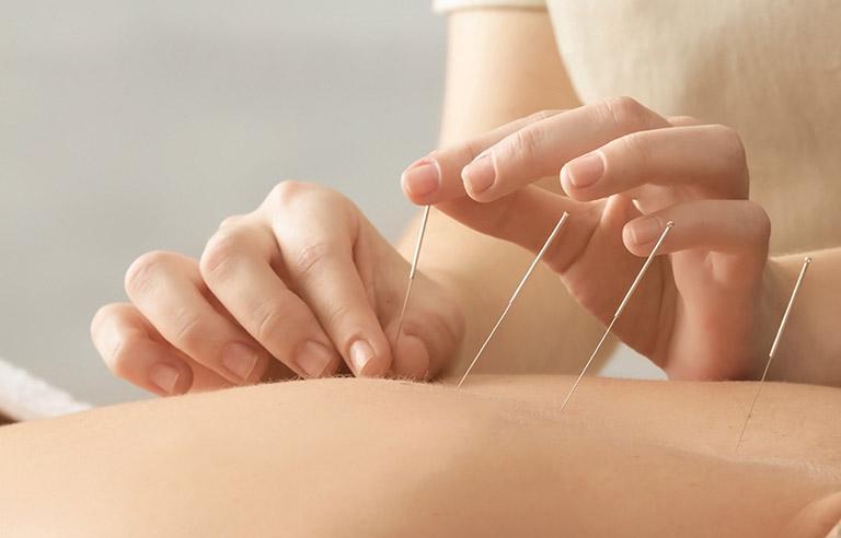 Liệu pháp châm cứu, bấm huyệt giúp tăng hiệu quả điều trị