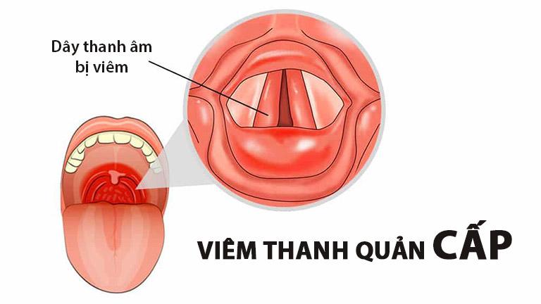 Có 2 dạng viêm thanh quản thường gặp: Cấp và mãn tính