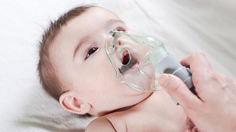Viêm tắc thanh quản hay còn gọi là viêm thanh khí phế quản, thường gặp ở trẻ nhỏ