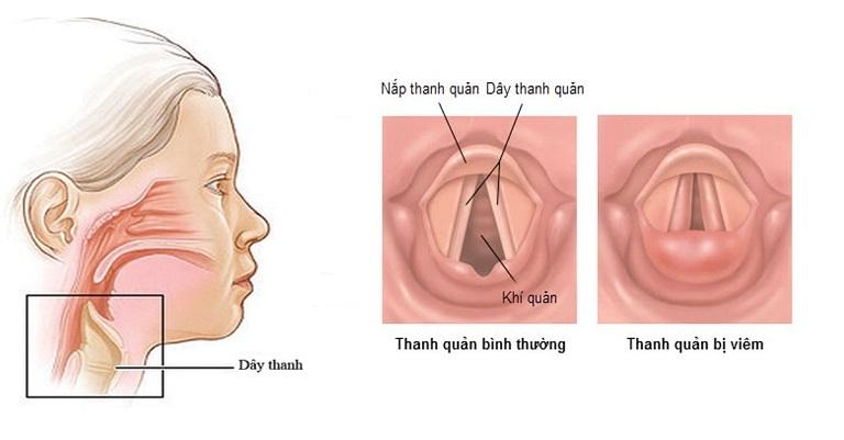 Trong viêm thanh quản, dây thành bị viêm hay bị kích ứng