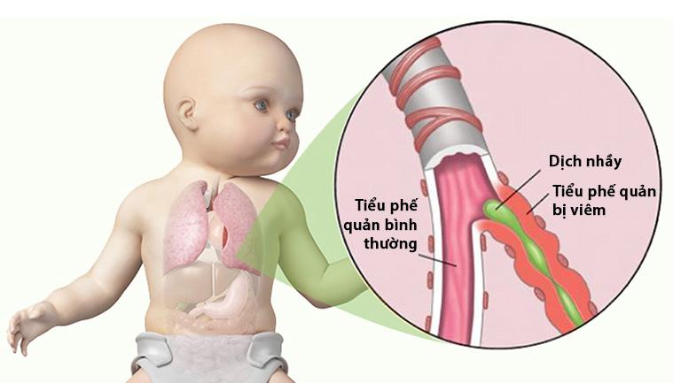 Trẻ sơ sinh là đối tượng dễ bị viêm tiểu phế quản nhất