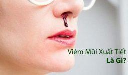 Viêm xoang chảy máu mũi xuất tiết là dấu hiệu cảnh báo bệnh đang có chiều hướng xấu dần