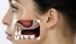 Viêm xoang hàm do răng là một bệnh lý phổ biến ở người lớn