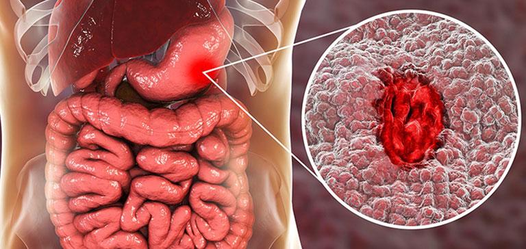 Cách xử lý khi bị xuất huyết dạ dày