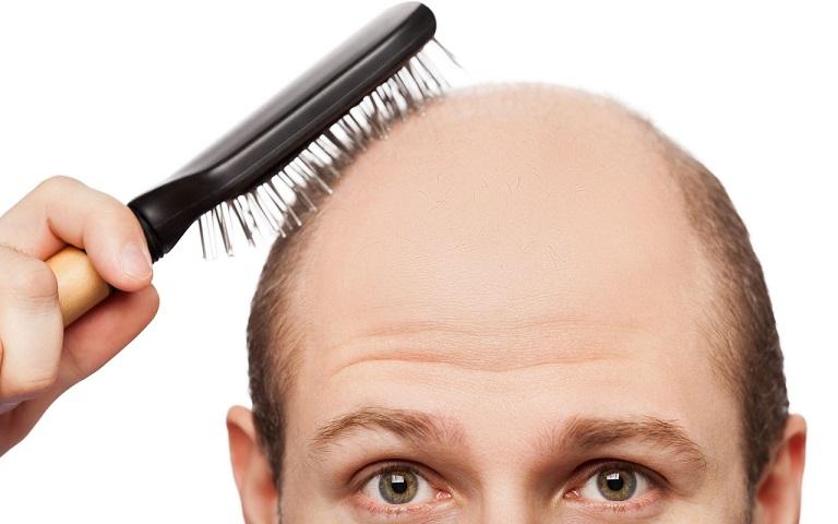 Hói đầu do nhiều nguyên nhân từ di truyền, bệnh lý nền đến tác nhân bên ngoài