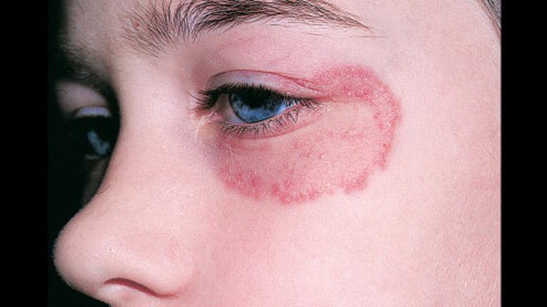 Bệnh không được điều trị kịp thời sẽ gây ra hậu quả nghiêm trọng