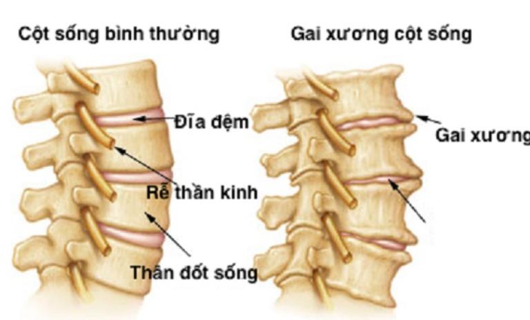 Sự lắng đọng canxi bất thương tại khớp và dây chằng hình thành nên các gai xương cột sống