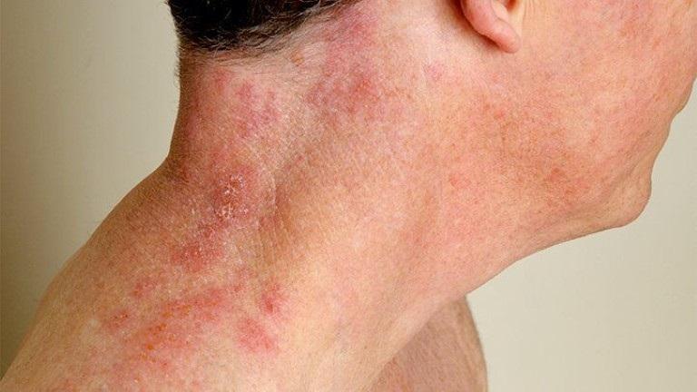 Bệnh có lây lan nên cần phải áp dụng các biện pháp phòng tránh