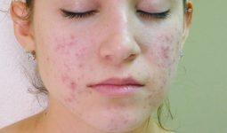 Viêm nang lông ở mặt là hiện tượng nang lông ở da mặt bị các vi khuẩn, nấm xâm nhập và tấn công