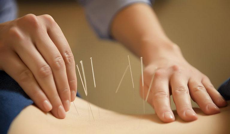 cách chữa đau dây thần kinh tọa tại nhà bằng châm cứu