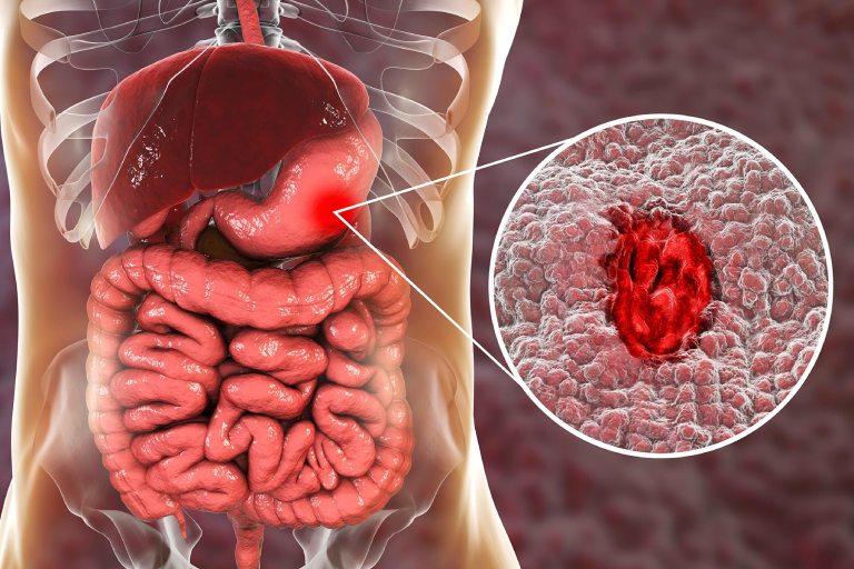 Cách chữa xuất huyết dạ dày tại nhà
