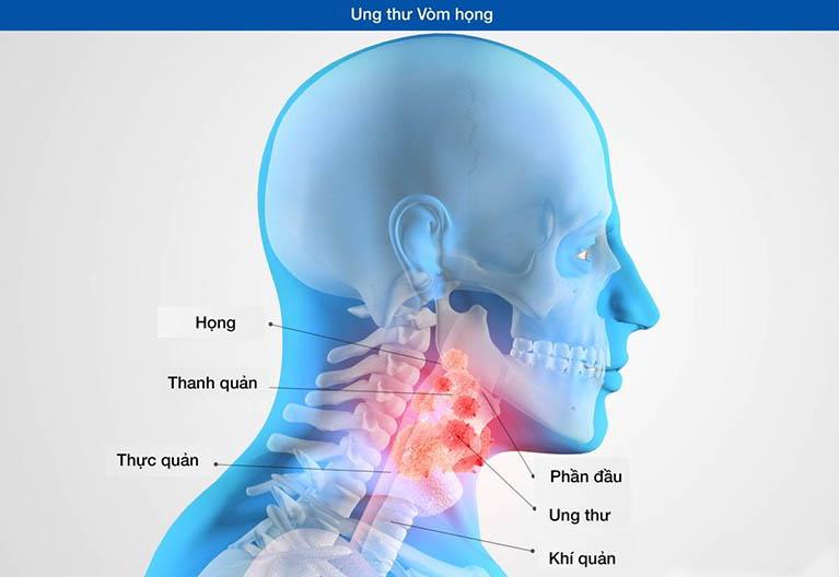 Gây bệnh ung thư vòm họng