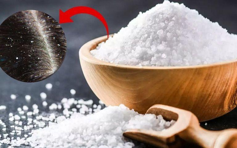 Cách trị gàu bằng muối đơn giản, phù hợp với nhiều đối tượng
