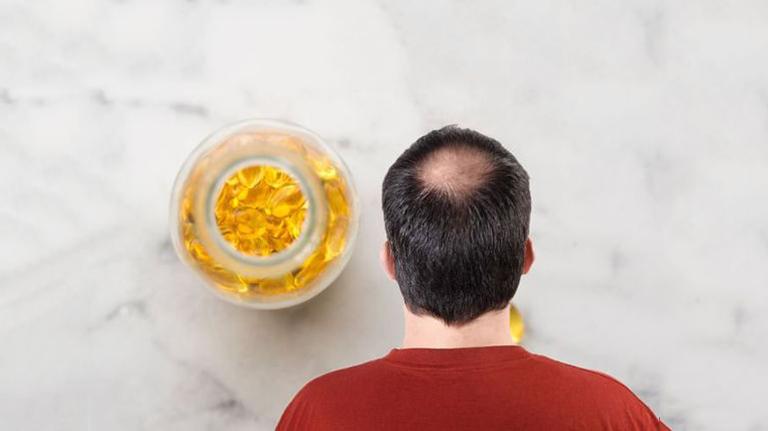 Thiếu chất cũng có thể dẫn tới rụng tóc