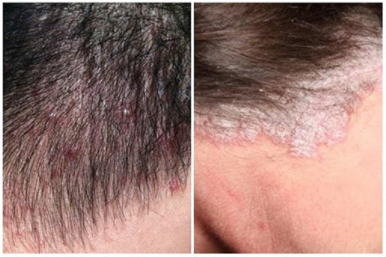Vảy nến ở đầu thường xuất hiện ở trong tóc và rìa tóc