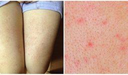 Cách trị viêm nang lông tại nhà