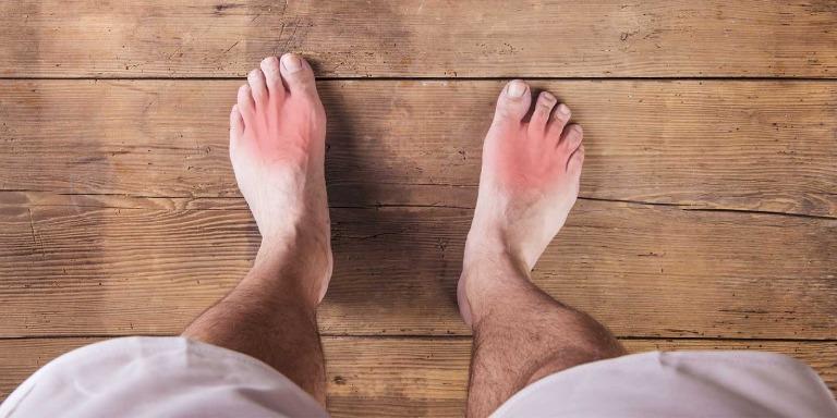 Hoạt chất trong lá sa kê có tác dụng làm giảm các triệu chứng khó chịu do bệnh gout gây ra