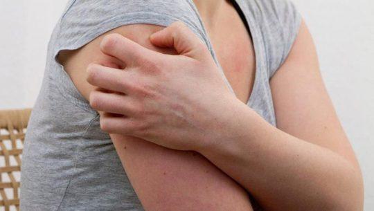 Đau sau zona là một trong số những biến chứng thường gặp