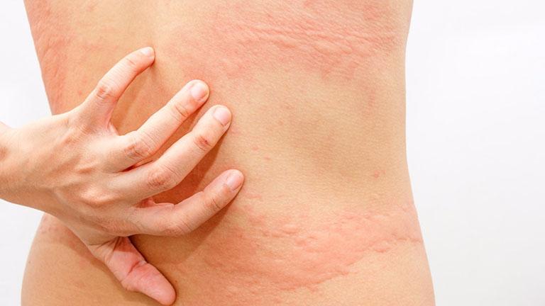 Dị ứng hải sản là hiện tượng da bị nổi mề đay, phát ban, ngứa họng