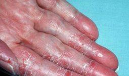 Nhiều người nhầm tình trạng dị ứng nước rửa chén với việc cơ thể thiếu vitamin C